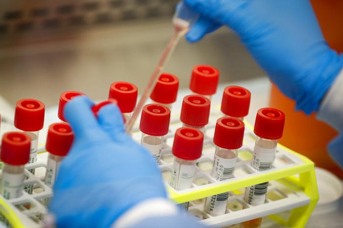 A technician prepares COVID-19 coronavirus patient samples for testing at a laboratory in New York's Long Island.